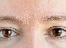 Cara-menghilangkan-kulit-kering-pada-wajah